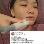 蘋果肌下垂,即老十年 – Elaine Wong