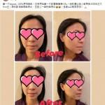 無痛V臉一次見效 – Wendy Cho