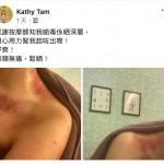 除壞痧防百病 – Kathy Tam