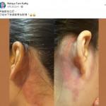耳背刮痧促進全身循環 – Kathy Tam